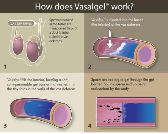 content-1486467313-vasalgel-infographic-lina-web.jpg