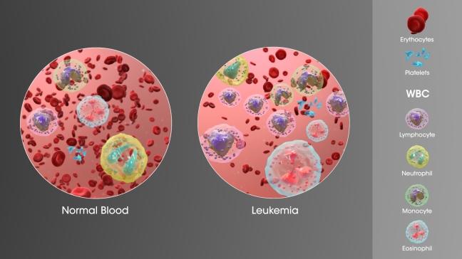 3D_Medical_Animation_still_showing_Leukemia