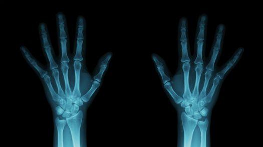 wrist xrays.jpg